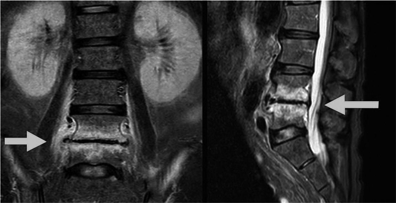 末期 多発 腫 性 症状 骨髄